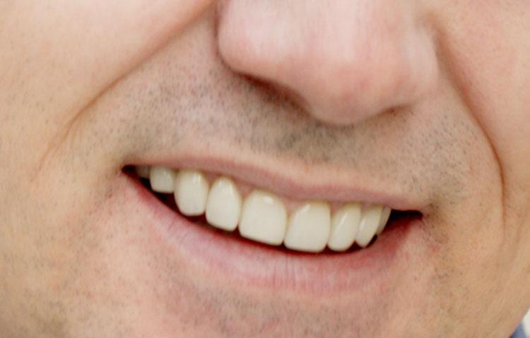Close up of straightened teeth