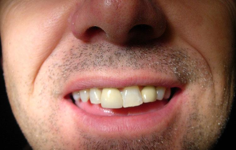 Close up of mans teeth before being straightened