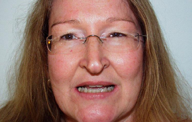 Womans face requiring dental work