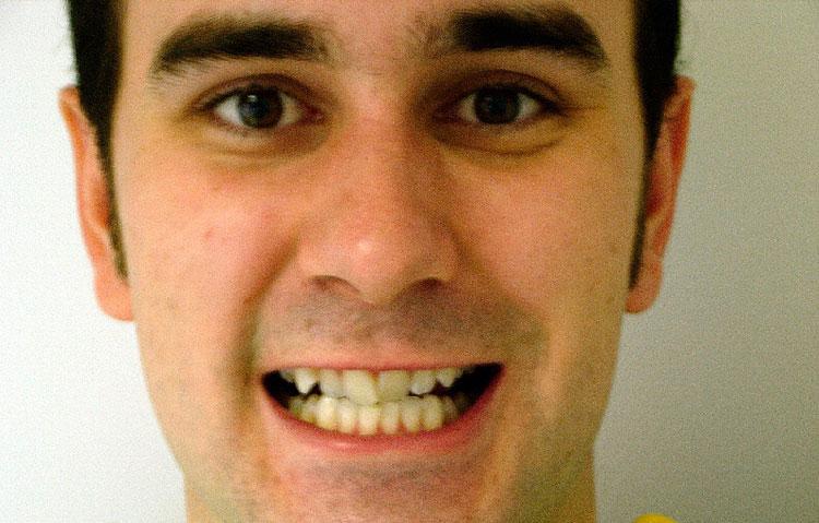 Man showing wonky teeth before procedure