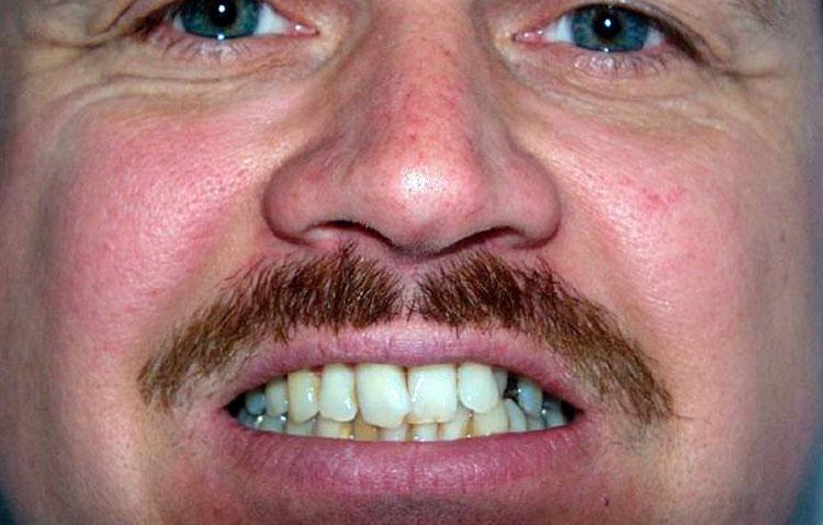 Man showing teeth in need of dental work