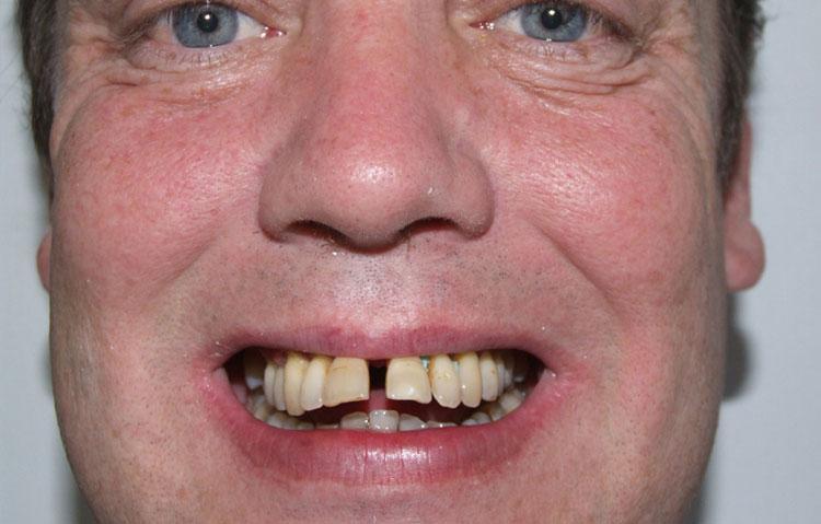 Man showing teeth before being straightened