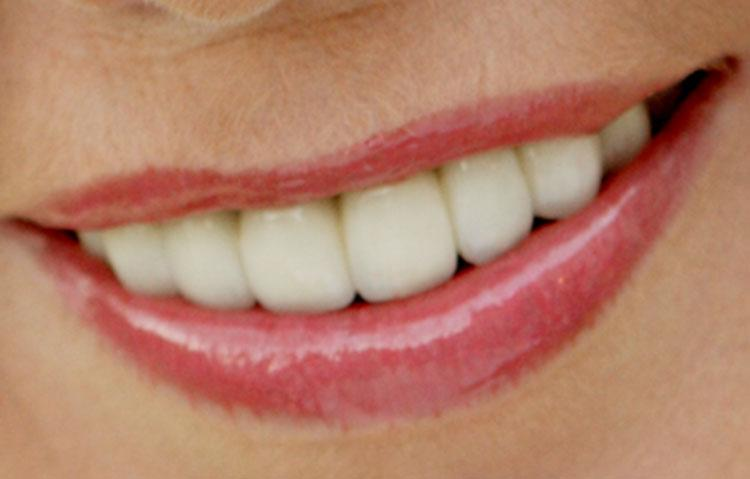 Close up of teeth after being straightened