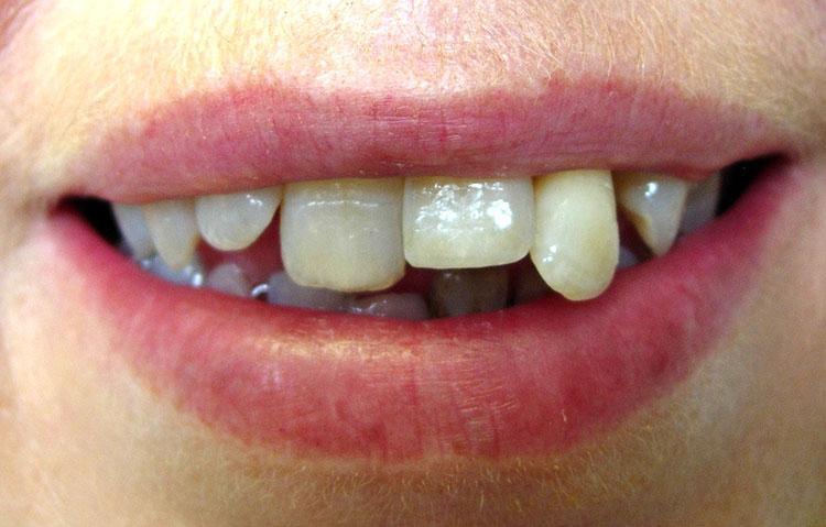 Close up of wonky teeth