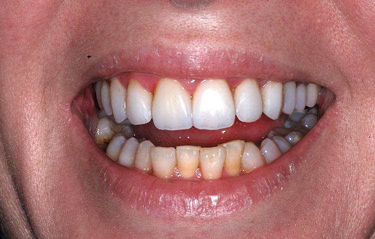 Close up of teeth before dental work