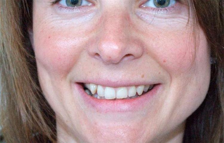 Woman showing teeth before dental work