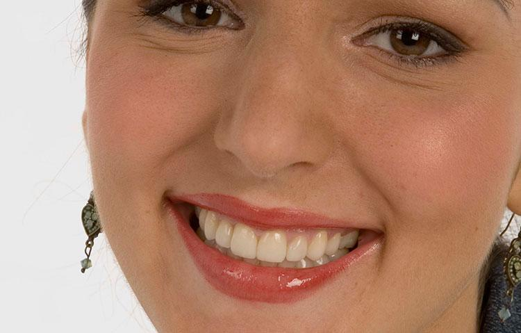 Woman showing teeth after being straightened