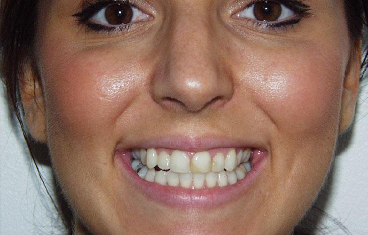 Woman showing teeth requiring dental work