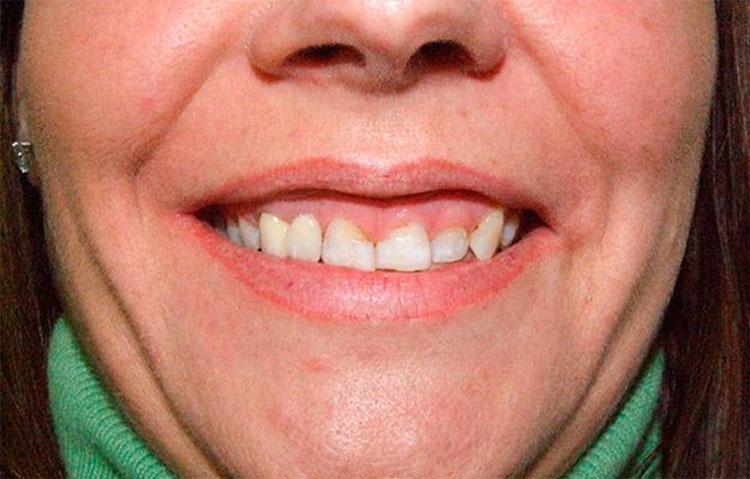 Woman showing unstraightened teeth