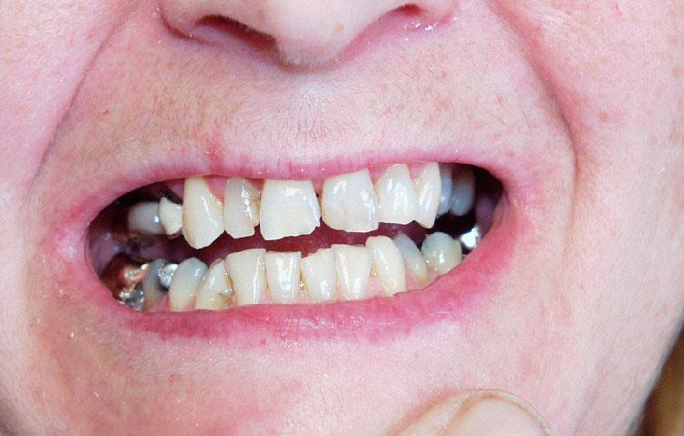 Close up of teeth requiring dental work