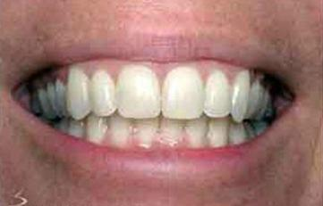 Teeth after they've been straightened