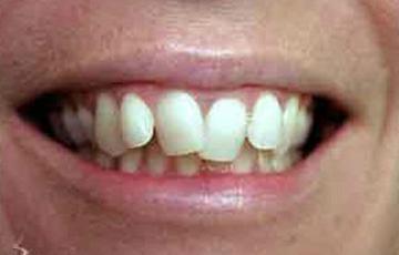 Unstraightened teeth 3