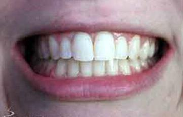 After example of straightened teeth