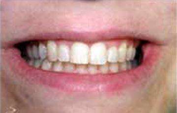 showing teeth through smiling