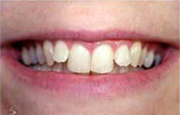 Example of unstraightened teeth